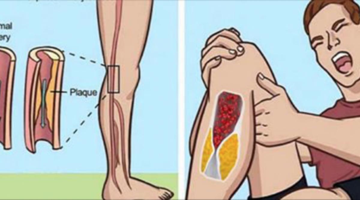 7 signes d'avertissement que vous avez des artères bloquées
