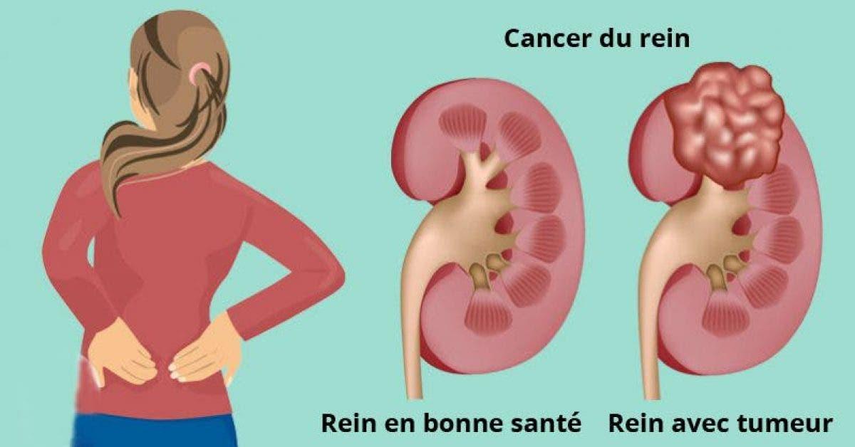 7 signes qu'un cancer se développe dans vos reins