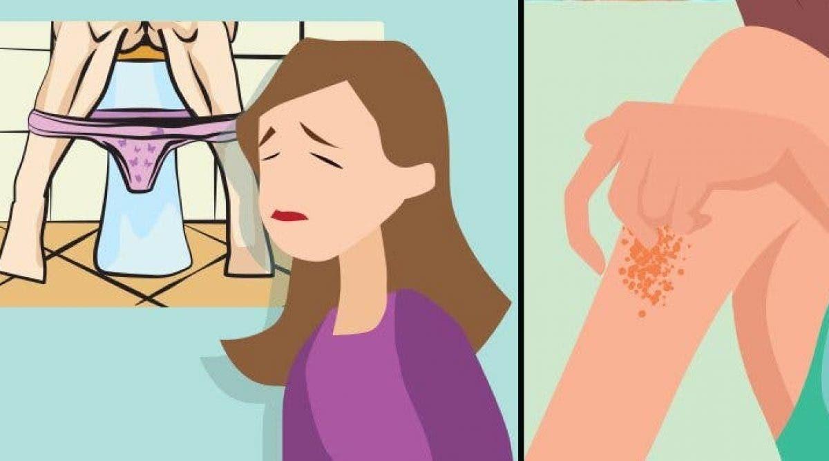 Signes que vous avez trop de sucres dans le sang