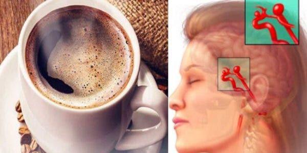 8 choses du quotidien qui peuvent déclencher une rupture d'anévrisme cérébral (AVC)