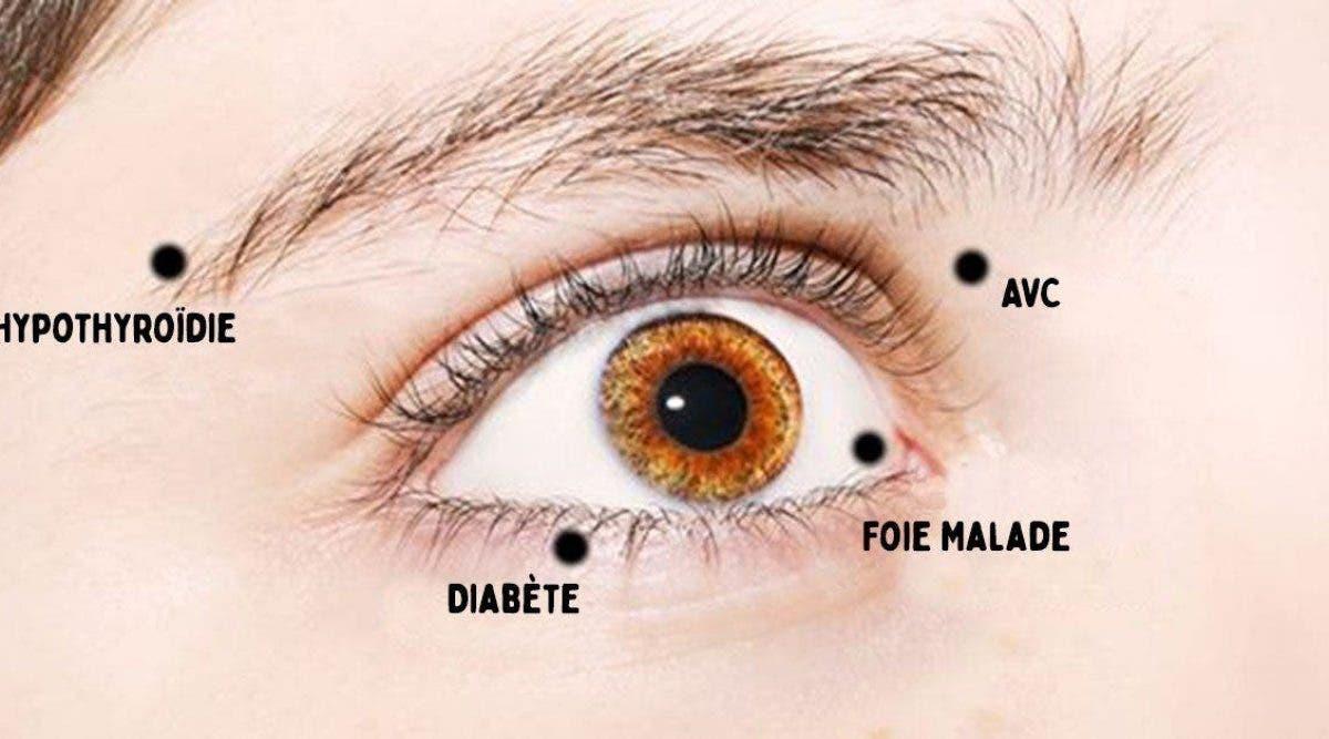 8 choses que vos yeux essaient de vous dire à propos de votre santé