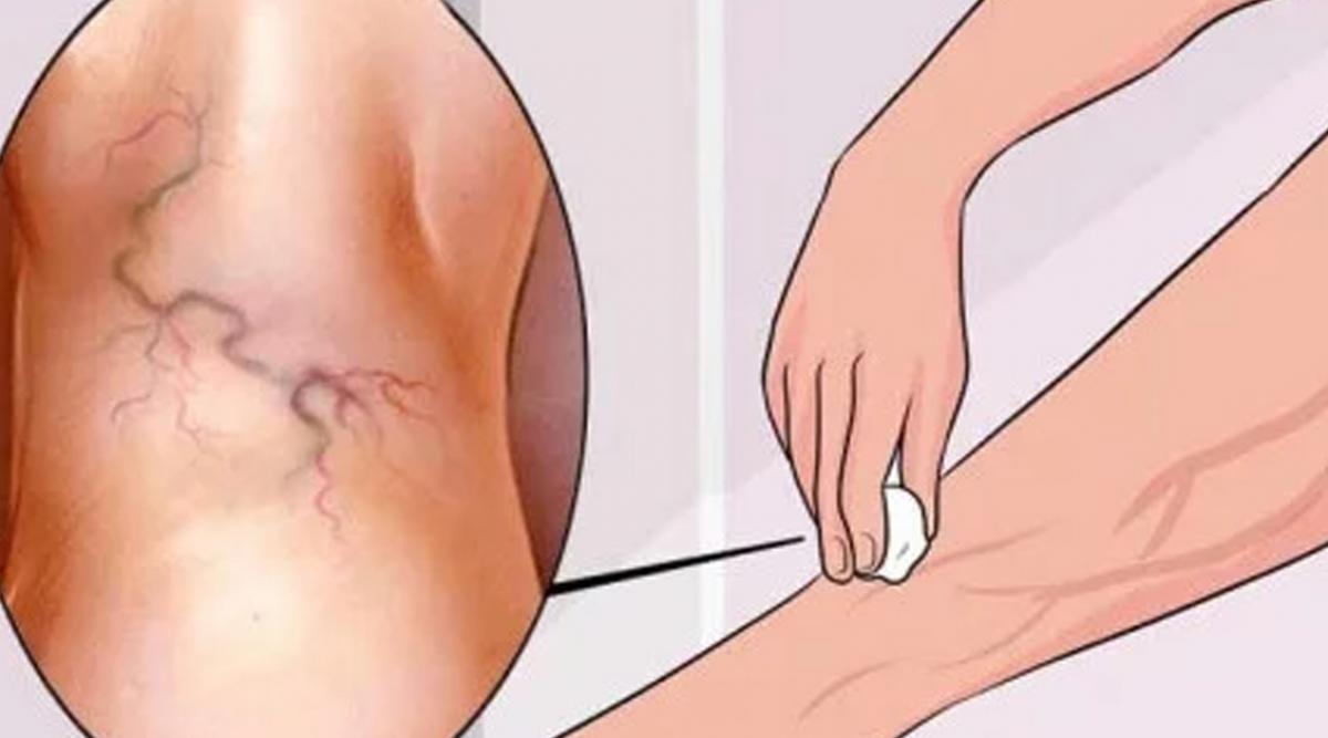 8 exercices simples pour traiter les varices