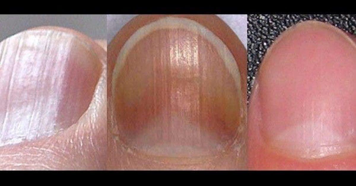 8 problemes de sante detectable sur vos ongles 1