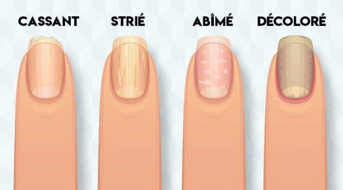 problèmes de santé que révèlent vos ongles