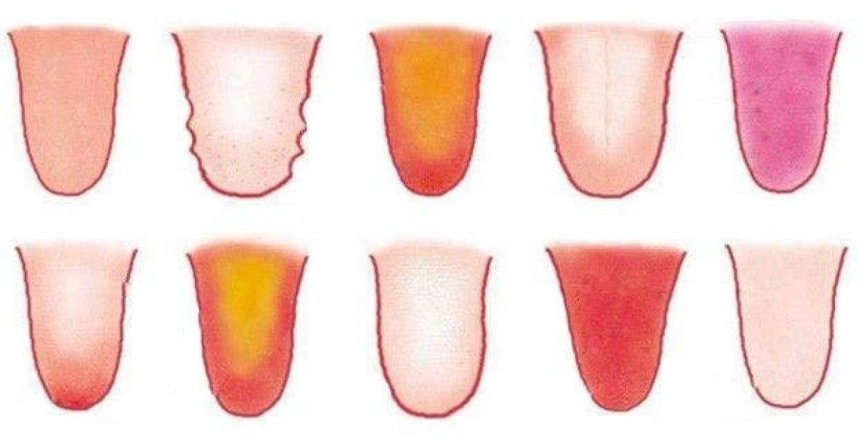 8 problemes de sante reveles par votre langue 1