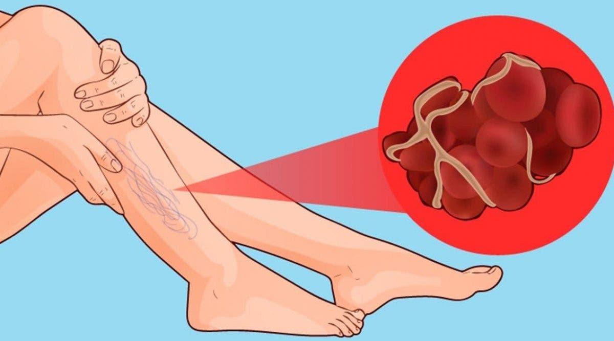 8 señales de que tiene un coágulo de sangre que puede causar ...