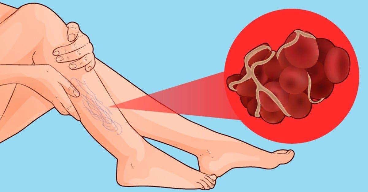 8 signes que vous avez un caillot sanguin qui peut provoquer un infarctus ou un AVC