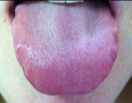 Une langue avec des ondulations sur le côté