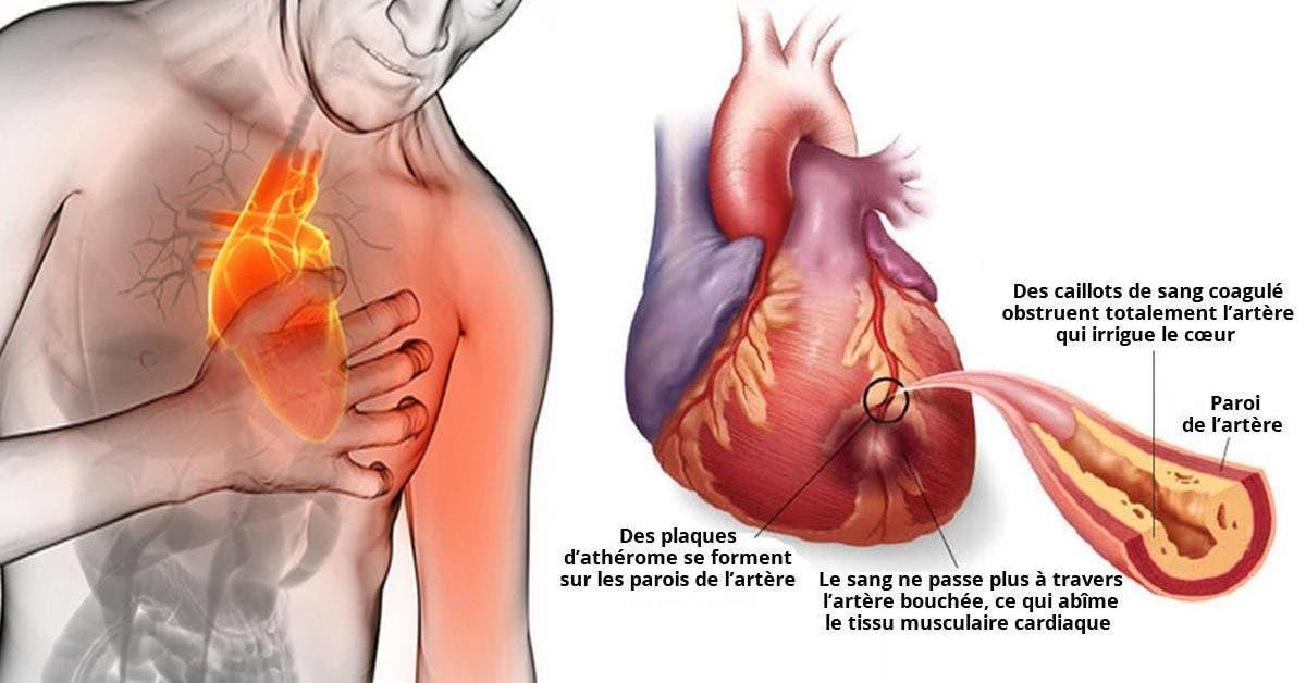 80 des crises cardiaques pourraient etre evitees si tout le monde faisait ceci 1