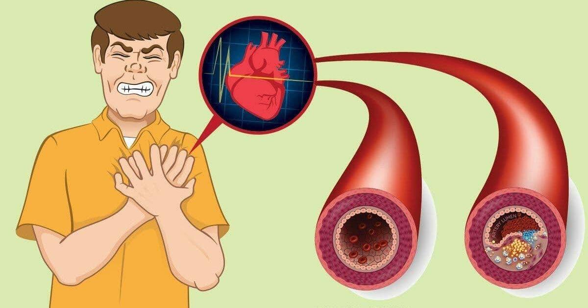 9 aliments qui nettoient vos arteres et previennent les crises cardiaques 1