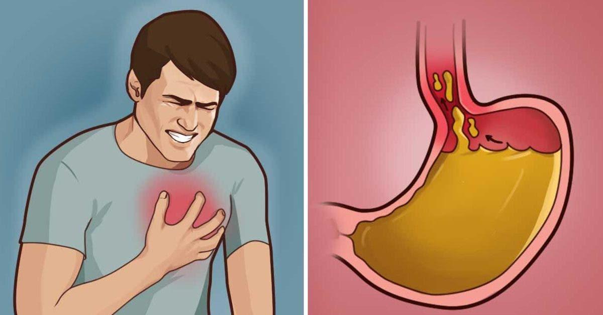 9-astuces-naturelles-de-traiter-les-brulures-destomac-ou-le-reflux-acide