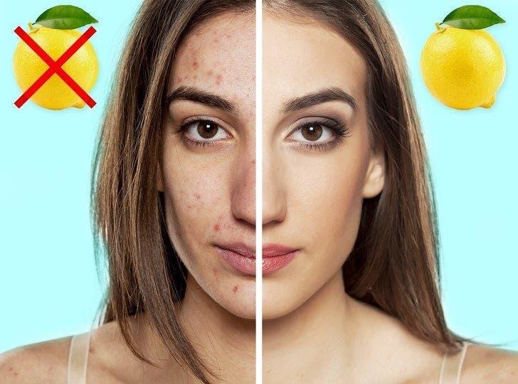 9 vertus santé du citron
