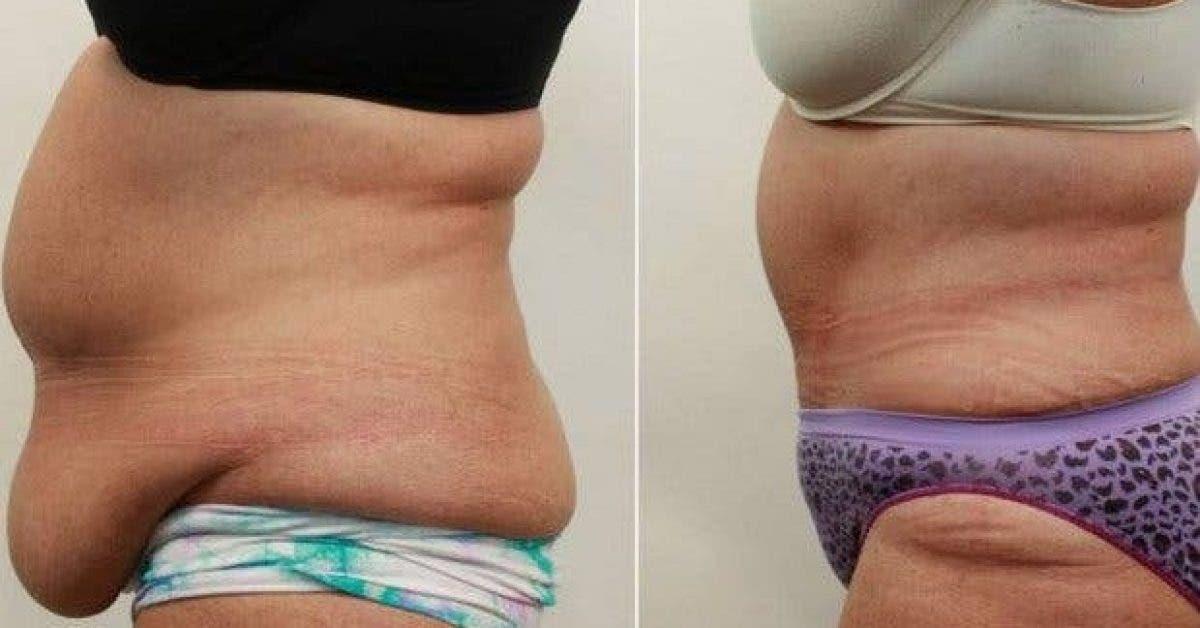 9 remedes pour faire fondre la graisse abdominale 1 1