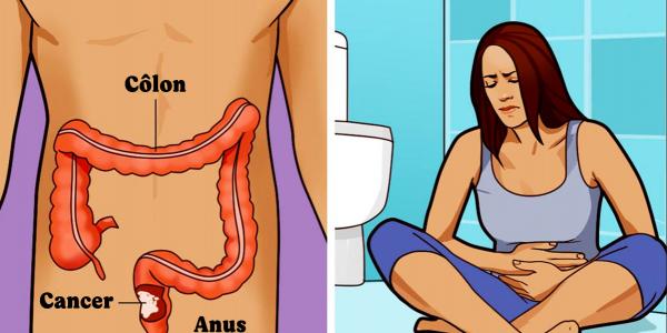 9-symptomes-du-cancer-du-colon