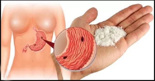 9 utilisations étonnantes du bicarbonate de soude qui peuvent transformer votre vie