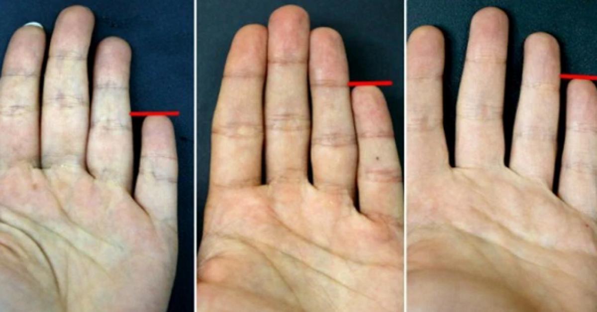 Ce que votre petit doigt révèle sur vous !