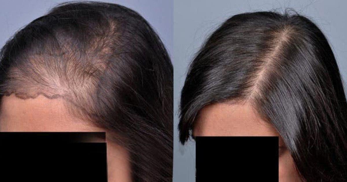 Appliquez ceci sur vos cheveux pour stimuler leur pousse rapidement 1