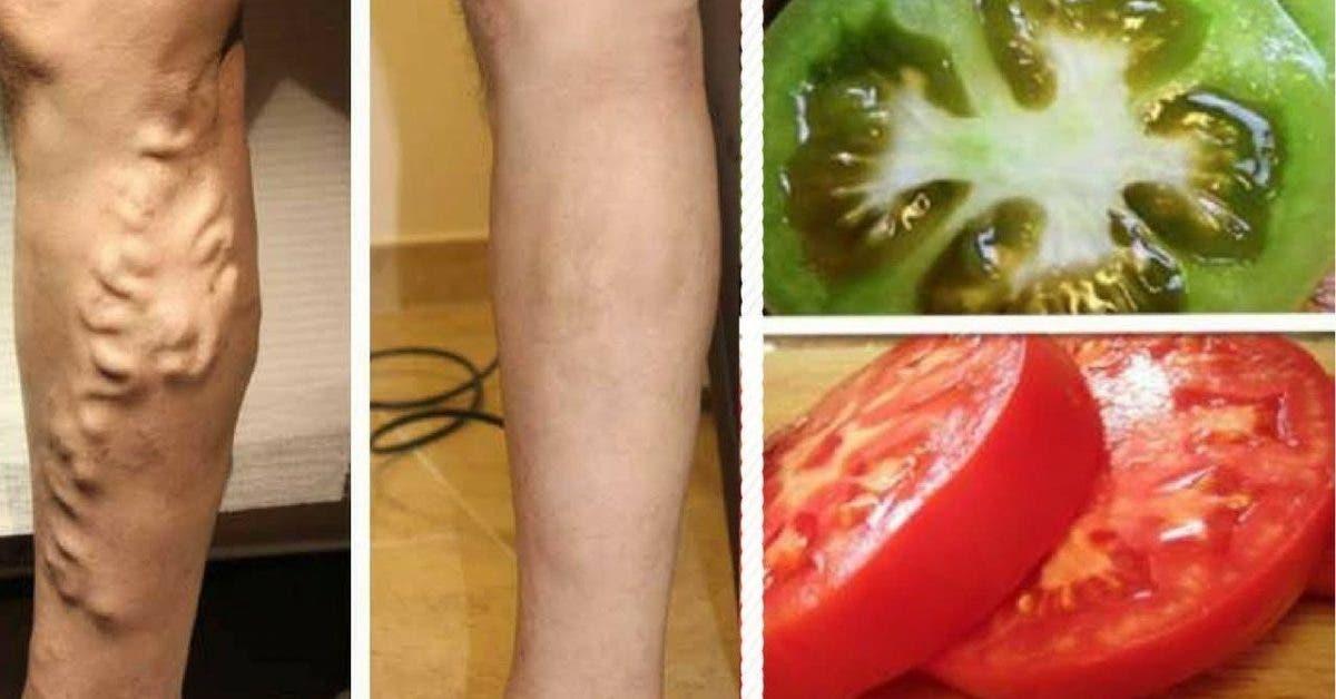 Apprenez à éliminer les varices en utilisant de la tomate