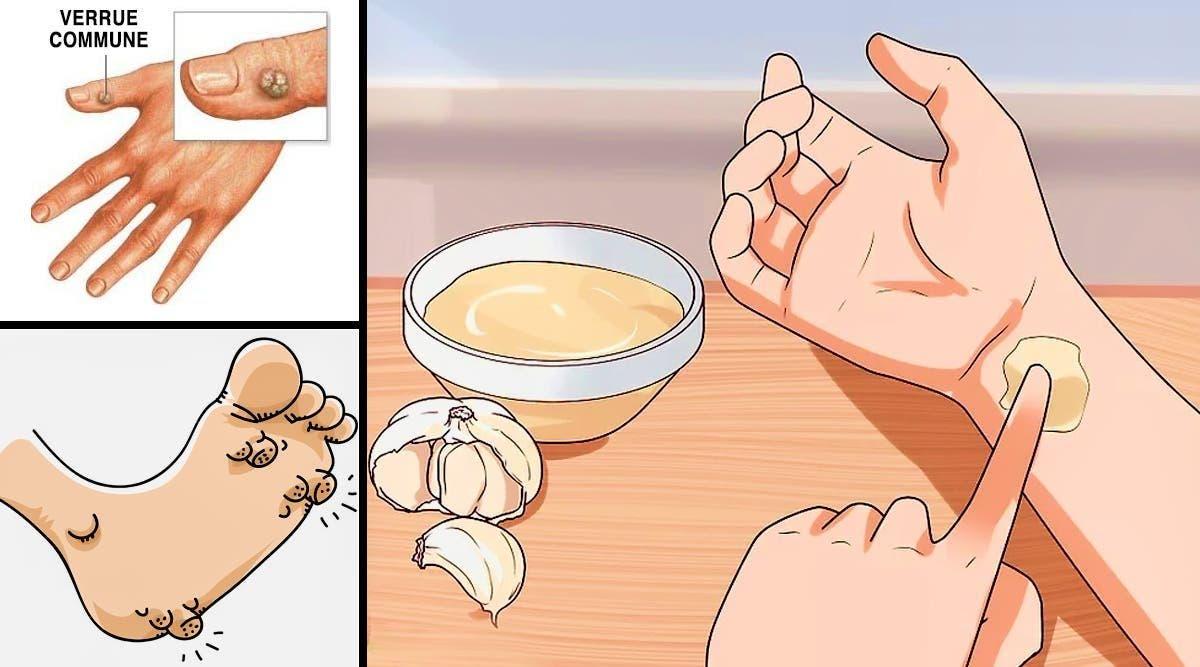 Apprenez à utiliser l'ail pour éradiquer les verrues