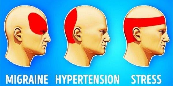 Apprenez à vous débarrasser d'un mal de tête