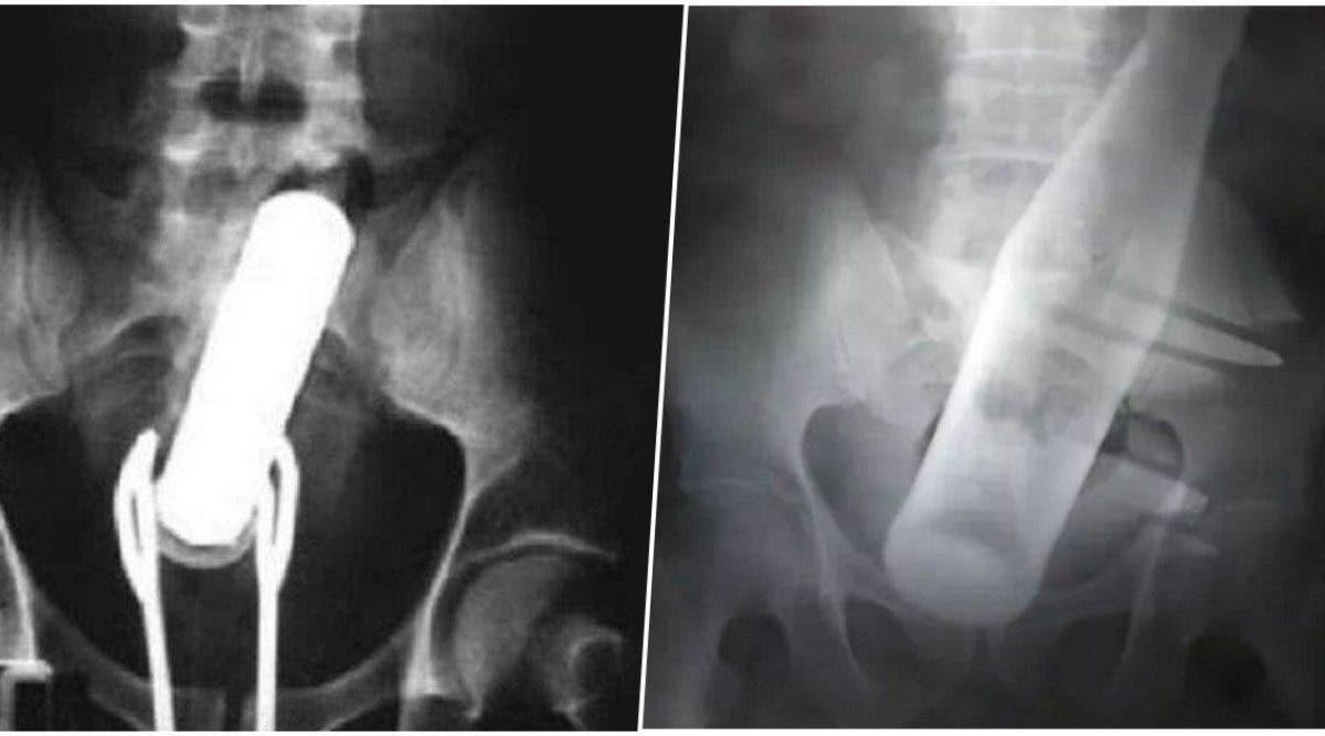 Après de fortes douleurs à l'anus