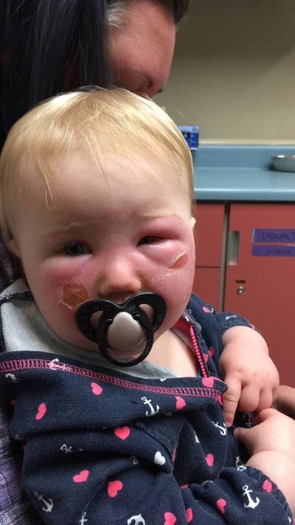 Après qu'une crème solaire ait brûlé le visage de sa fille