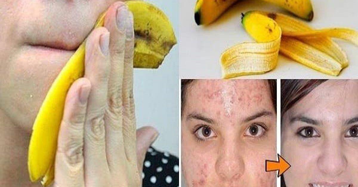 Arretez de jeter les peaux de banane voici 6 facons de les utiliser 1