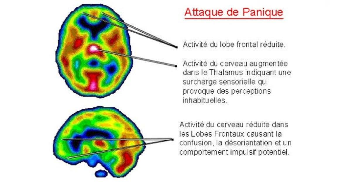 Attaques de panique et anxiete liees aux faibles niveaux de vitamine B et de fer 1