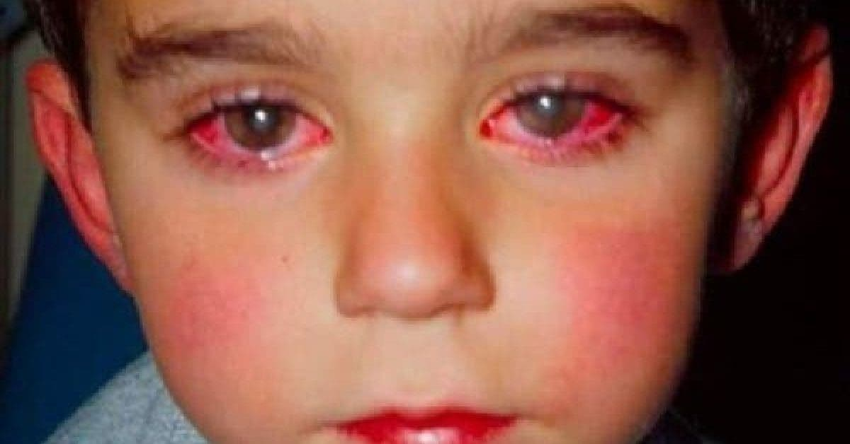 Attention cet enfant a perdu la vue a cause de ce jouet verifiez si vous lavez chez vous 1