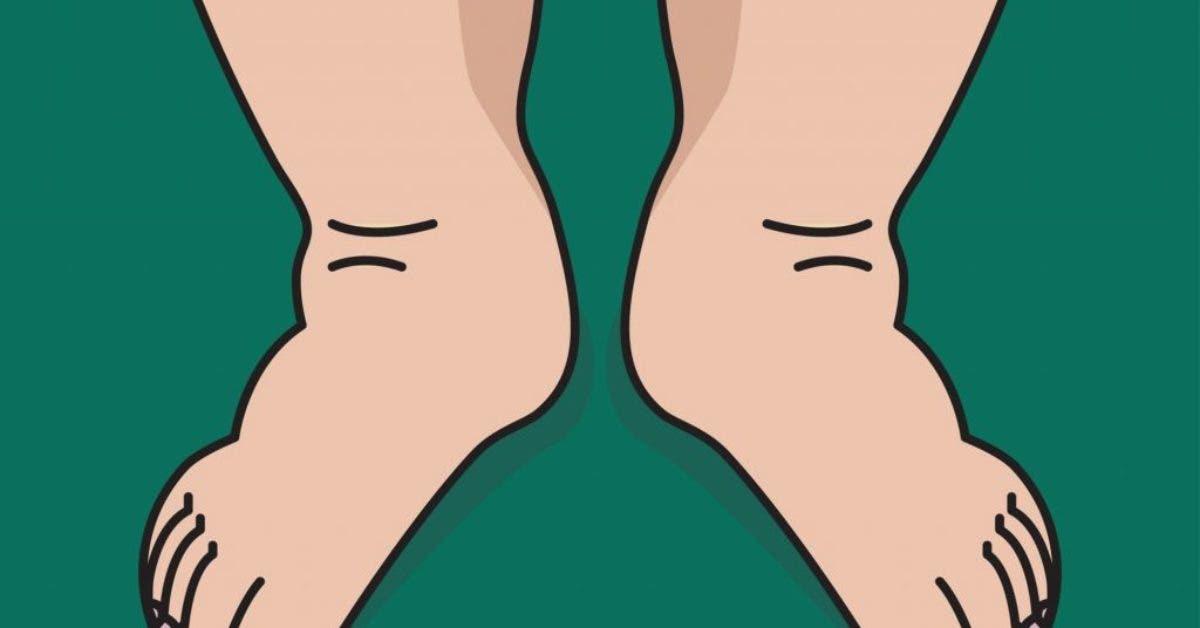 Avez-vous les pieds et chevilles gonflés ? 4 remèdes pour les dégonfler