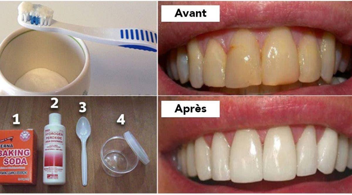 Blanchissez vos dents et débarrassez-vous de la plaque dentaire à la maison