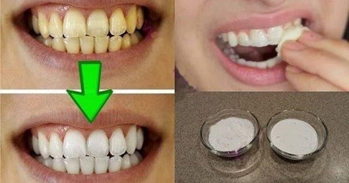 Blanchissez vos dents jaunes avec cette recette puissante 1 1