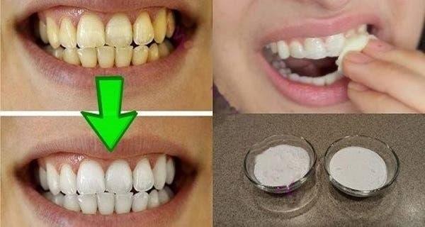 blanchissez-vos-dents-jaunes-avec-cette-recette-puissante