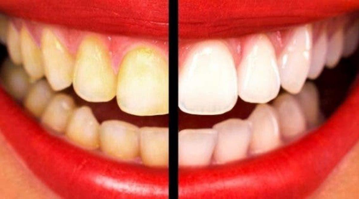 Blanchissez vos dents jaunes en moins de 2 minutes