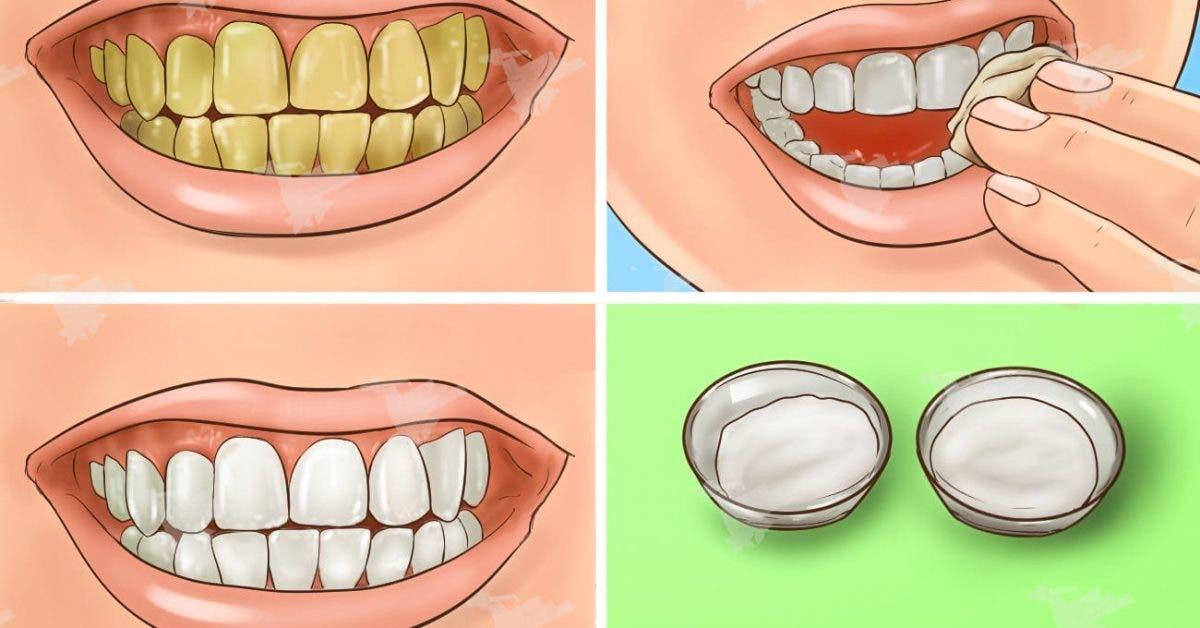 Blanchissez vos dents jaunies en quelques minutes