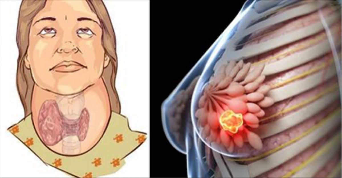 Boire cette boisson détruit votre thyroïde et cause le cancer du sein