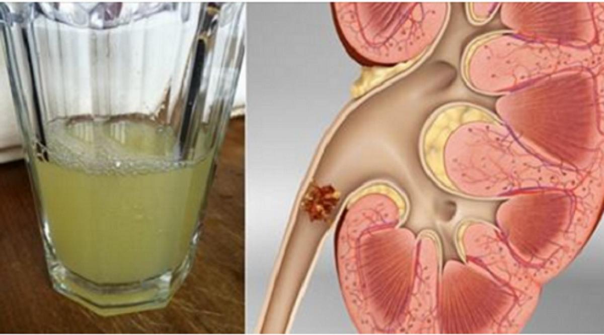Boire uniquement un demi verre de cette boisson va complètement dissoudre vos calculs rénaux