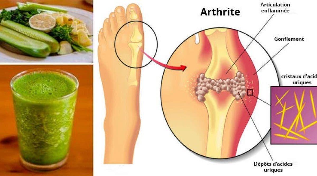 L'arthrose et la goutte peuvent vous causer des douleurs intenses au niveau des articulations. Essayez cette recette naturelle et débarrassez-vous de cette douleur qui vous empoisonne la vie !
