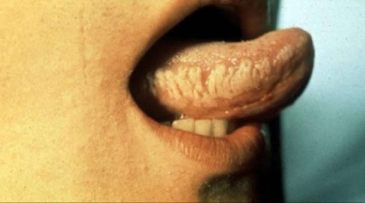 Les symptômes des porteur du VIH, tout savoir sur la maladie