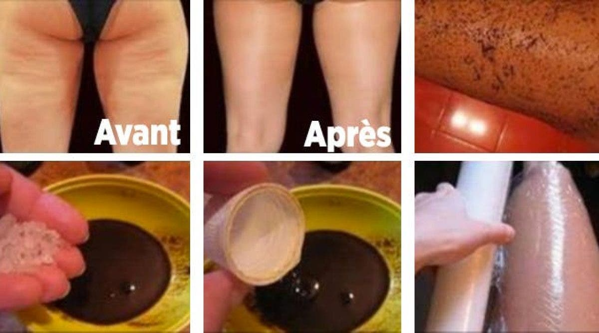 Les 5 remèdes maison les plus efficaces pour se débarrasser de la cellulite en un rien de temps