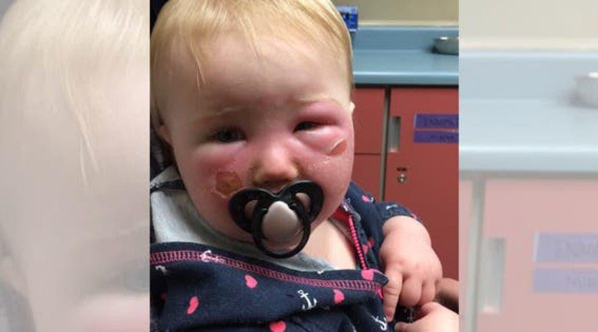 Ce bébé a eu des brûlures sévères – maintenant sa mère prévient contre ce produit !