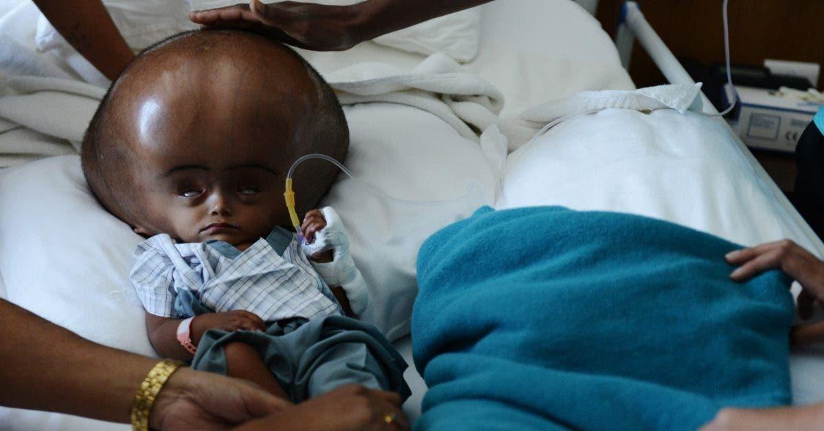 Ce bébé a réussi à survivre ! Découvrez son histoire !