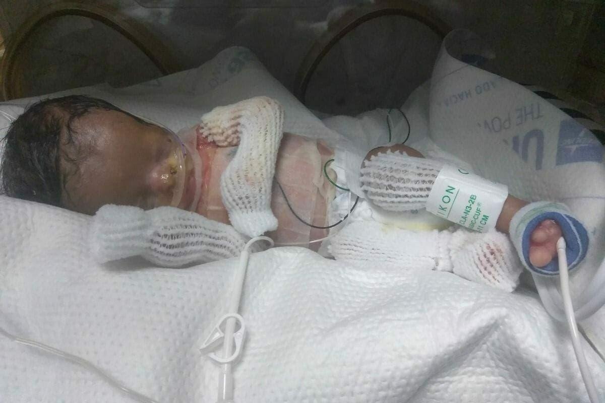 Ce bébé né sans peau se prépare pour une importante opération chirurgicale