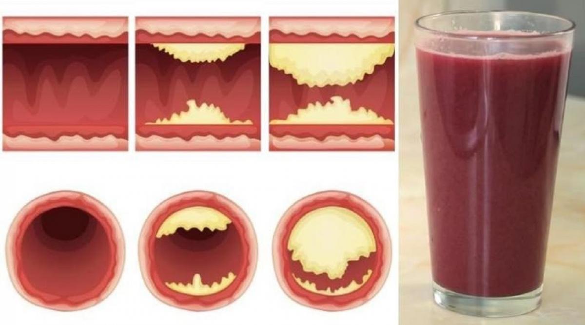 délicieux jus débouche vos artères et prévient les maladies cardiaques