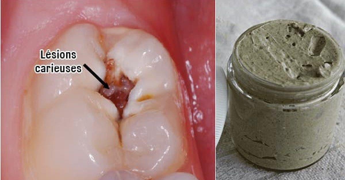 Ce dentifrice maison lutte contre les problemes dentaires les maladies gingivales et blanchit les dents naturellement 1