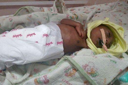 Ce petit bébé a été rejeté par ses parents à la naissance