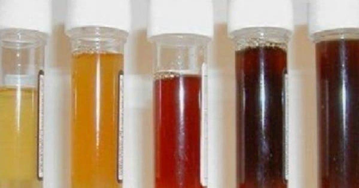 Ce que la couleur de votre urine revele sur votre sante 1