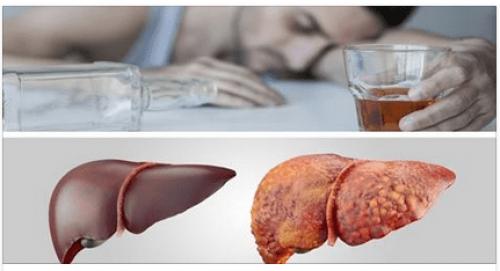Ce qui arrive à votre corps quand vous buvez de l'alcool régulièrement