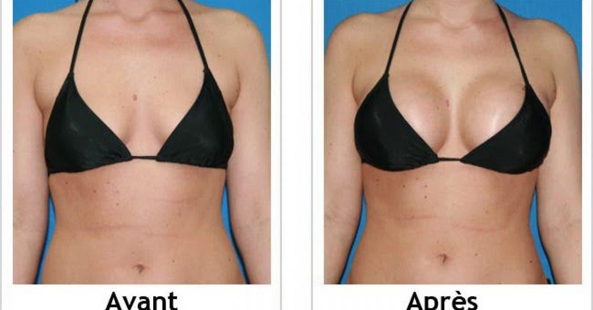 Ce quil faut savoir pour avoir des seins plus fermes