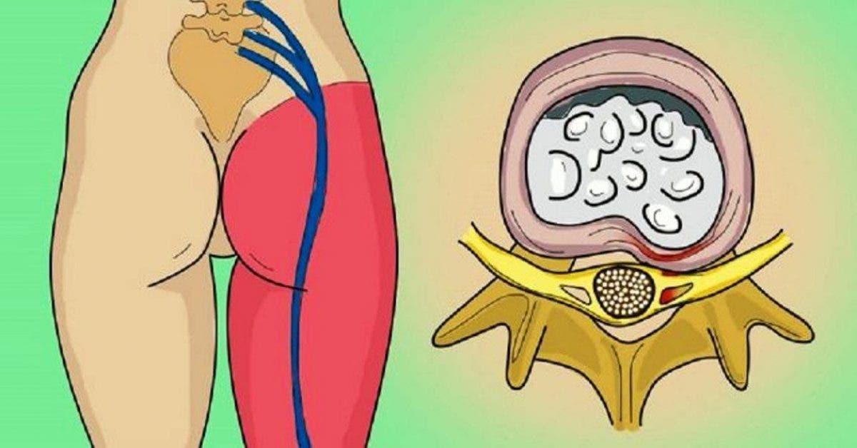 Une crise du nerf sciatique? Ce simple exercice d'une minute vous débarrasse de la douleur de la sciatique!